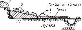 схема транспорта пульпы